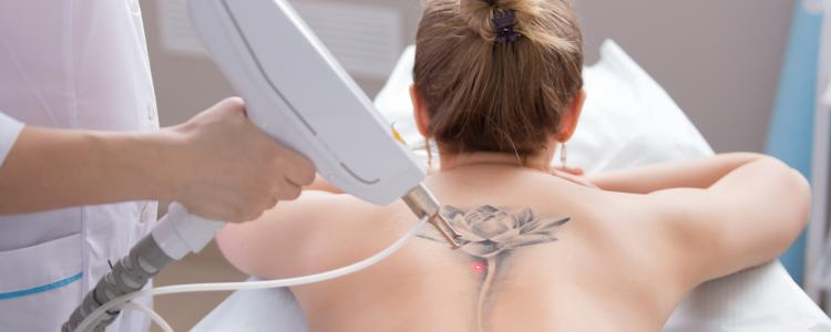 main of Get Your Questions and Concerns About Tattoo Removal Answered